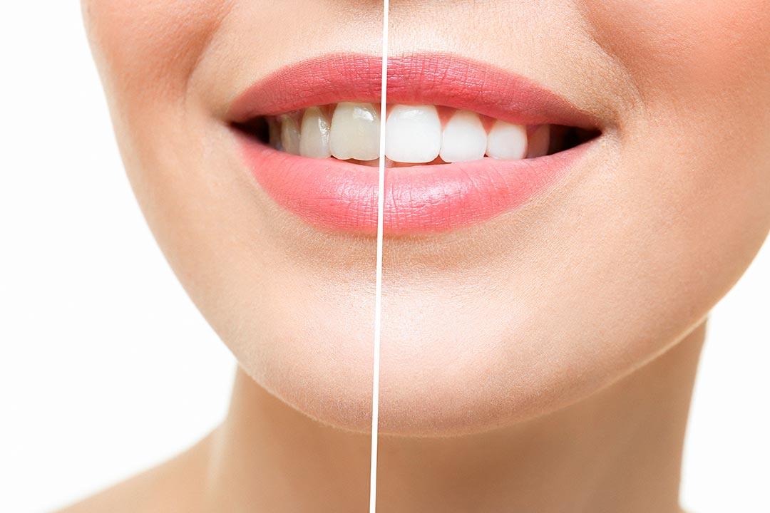 Vorher/nachher Effekt eines Bleachings der Zähne
