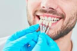 Eine Auswahl an Veneers mit unterschiedlichen Farbnuancen wird an die Zähne eines Patienten gehalten.
